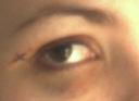 Kim's Black Eye (Detail)